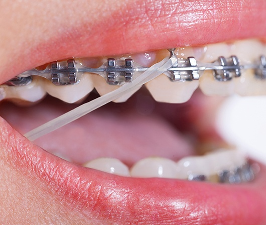 clear elastic on braces