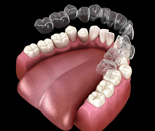 A digital image of an Invisalign aligner going on over the lower arch of teeth