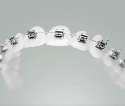 self ligating braces on model teeth