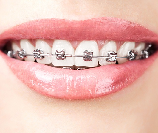 close up of self litagating braces
