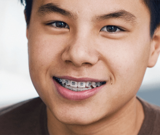 close up of boy with braces smiling