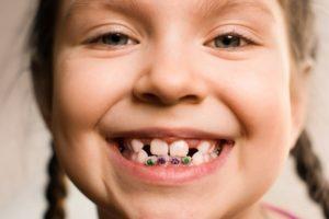 child with Phase 1 orthodontics